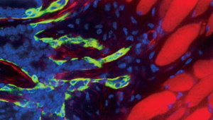 Surprising Roles for Cell Adhesion in Cancer Metastasis