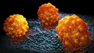 Seminar: Epigenetic Landscape of Human Melanoma Brain Metastasis